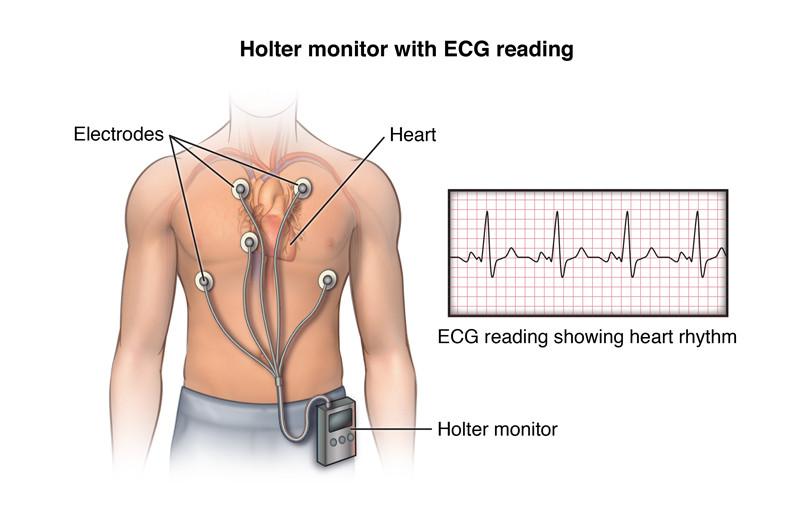 permette di registrare il ritmo cardiaco e l'attività elettrica del miocardio per diverse ore consecutive